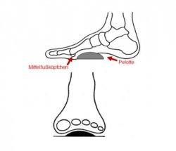 Выбираем силиконовые стельки: советы ортопеда