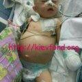 Ваша допомога може врятувати дитині життя