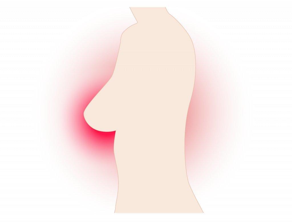 Когда идти к маммологу: топ 6 ранних симптомов рака груди