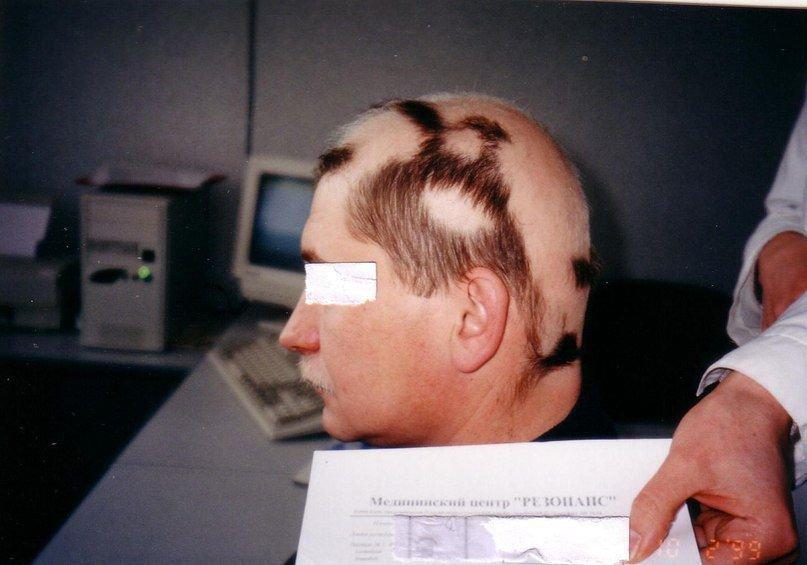 """Результаты лечения облысения в клинике хрономедицины """"Резонанс"""""""
