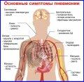 Скрытая пневмония: опасные симптомы