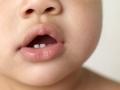 Появление первых зубов: как справиться?