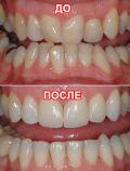 Опытный ортодонт в городе Черкассы фото