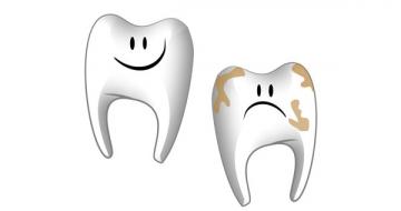 Профилактика зубной бляшки, или Почему сладкое вредно