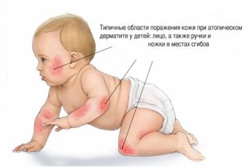 Атопический дерматит у детей: несколько важных фактов