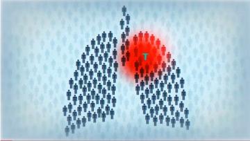Опасная ситуация с эпидемией туберкулеза в Украине